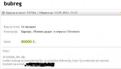 Shesim veshkën për 100 mijë euro